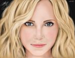 candice accola by brunoogp