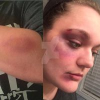 Bruising Makeup Trial Run Part 2 by GlassesandCrazyCurls