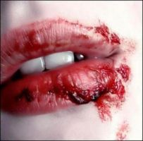Bloody Kisses by SafetypinHeart