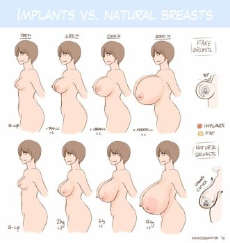 Implants vs natural breasts comparison - update by RasBurton