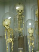 Victorian Fetus Display by Miskatonic-Jack