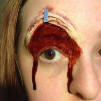 stapled eyelid. by ScarahScrewdriveR