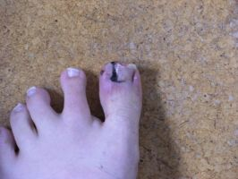 My new toe by annoyinglizardvoice