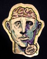 MTS - Hellenistic Trepanation by MVRH