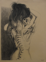 Scoliosis by TenFeetTall