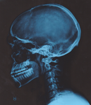 Lateral Skull X-Ray by AGP12