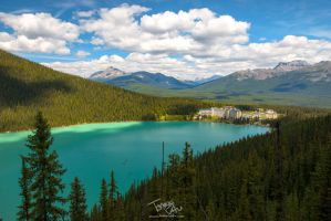 Lake Louise by voogac