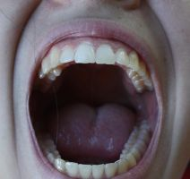Mouth XXXXXIII by KW-stock
