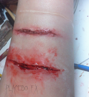 Healing by PlaceboFX