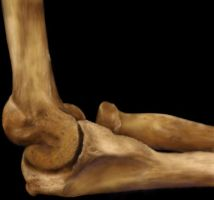 Arthritic Elbow Joint by Classikelly