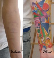 Abstract Scar Cover-up by madamelazonga