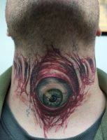 evil eyeball on throat...healed by graynd