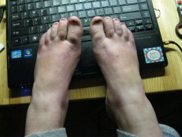 feet on the laptop by Marl1nde