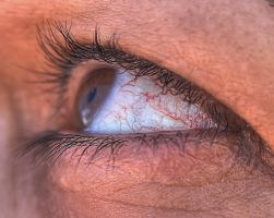 sclera-HDR by yoctox